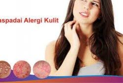 Atasi Alergi dengan Propolis Melia